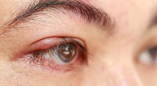 inflammation paupiere blepharite