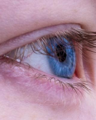 Treat swollen and inflamed eyelids naturally